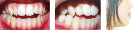 開咬の症例:治療前写真