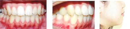 開咬の症例:治療後写真