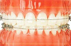 歯科矯正:矯正装置の使用写真