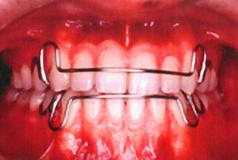 歯科矯正:保定器具の使用写真